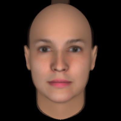 Facial asymmetry and torticollis and eye